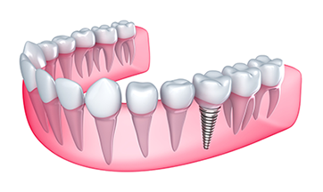 Restorative Dentistry - Dental Implants Grande Prairie, AB